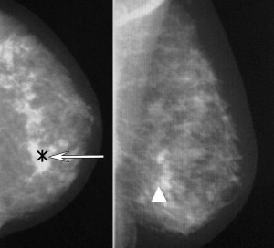 mammografia, Маммография, Маммография фото
