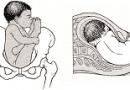 Жатырдағы баланың жамбастап орналасу күйі