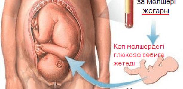 Жүктілік кезіндегі қант диабеті