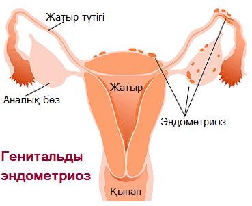 Эндометриоз ауруы, Эндометриоз ауруы: генитальды эндометриоз