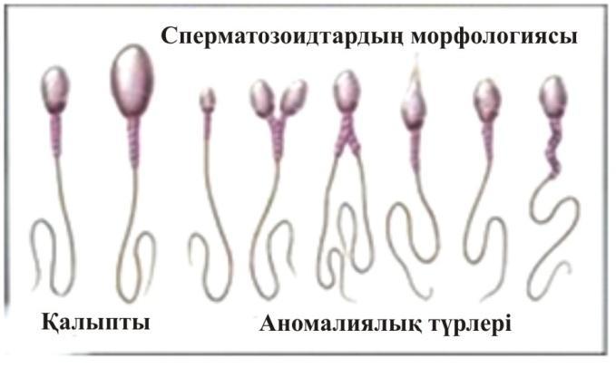 dusha-v-spermatozoide