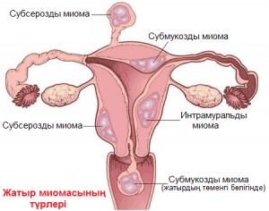 Жатыр миомасының түрлері