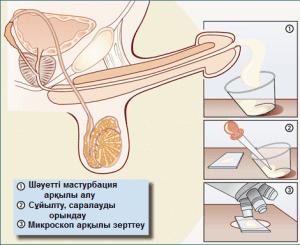 Спермограмма: материалды алу