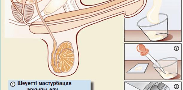 Спермограмма — еркек бедеулігінің диагностикасы